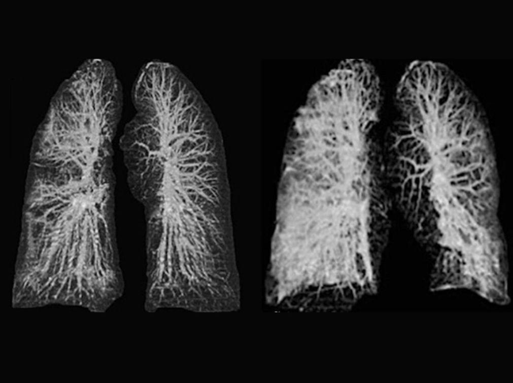 腹部呈磨砂玻璃状?欧洲首例确诊患者肺部X光是这样的…